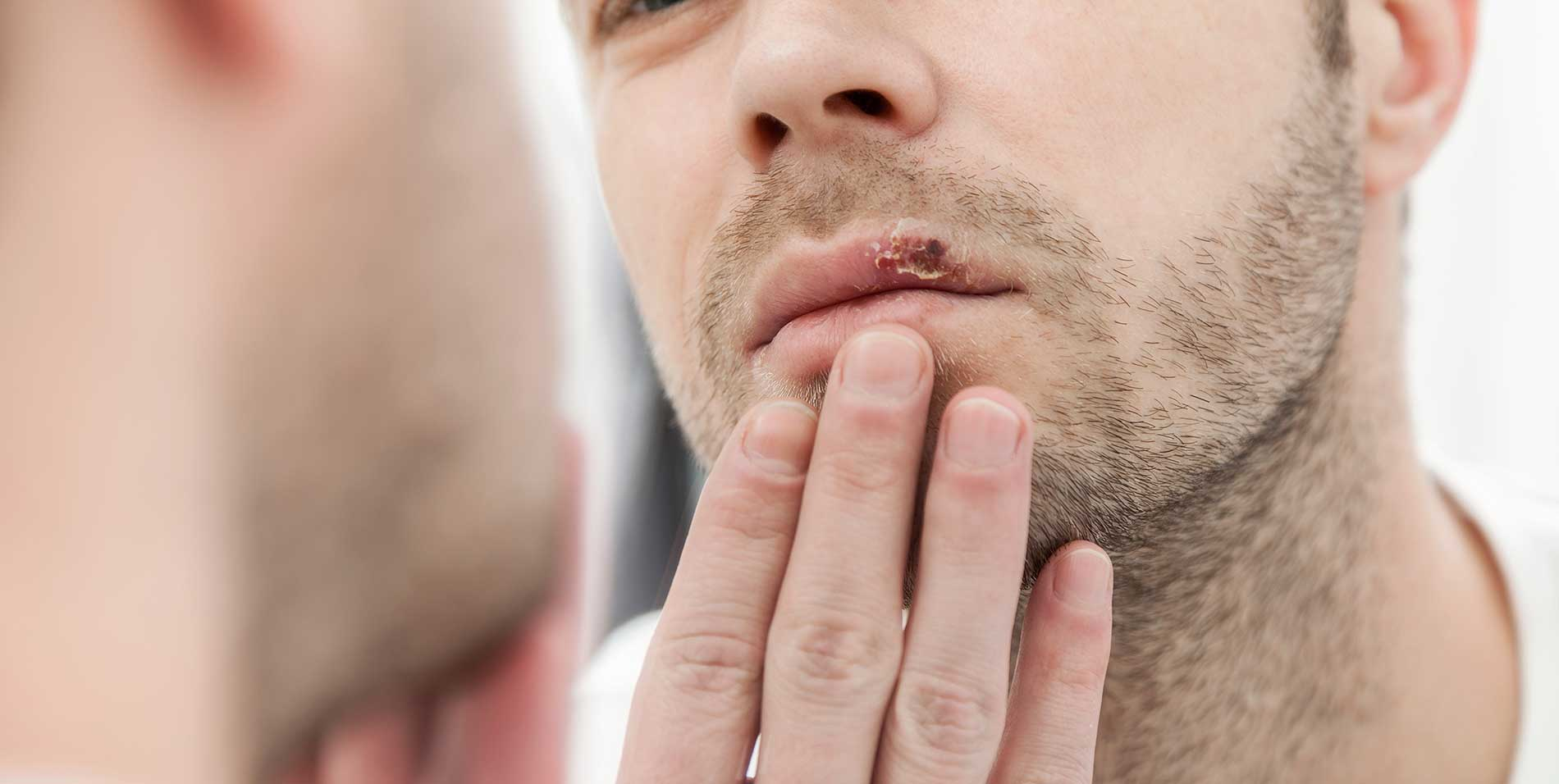 cold-sore-outbreaks